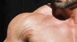 Las Mejores Cremas Antiestrías para Hombres